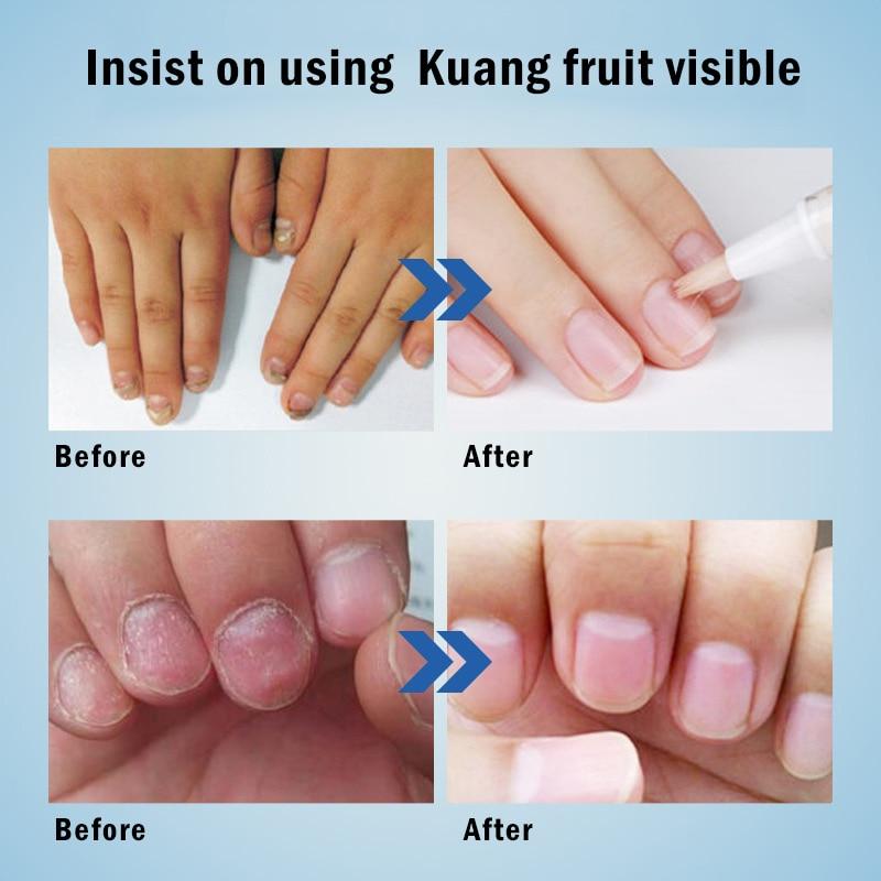 4*3ML Anti Fungal Treatment Nail Pen Onychomycosis Paronychia Infection Herbal Toe Finger Nails Health Beauty Accessories TSLM1