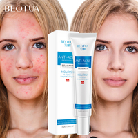 BEOTUA 100% Plant Acne Face Cream Anti Acne Treatment Shrink Pores Collagen Scar Removal Whitening Hyaluronic acid Moisturizing Facial Self Tanners & Bronzers