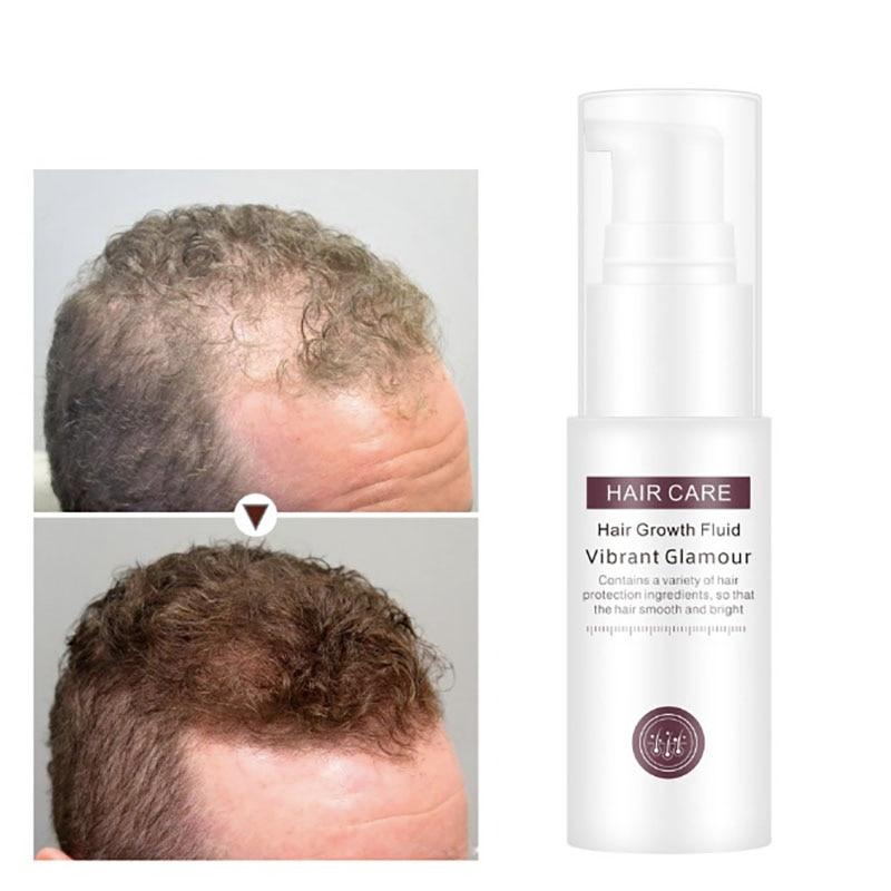 New Hair Growth Essence Hair Loss Liquid Natural Pure Origin