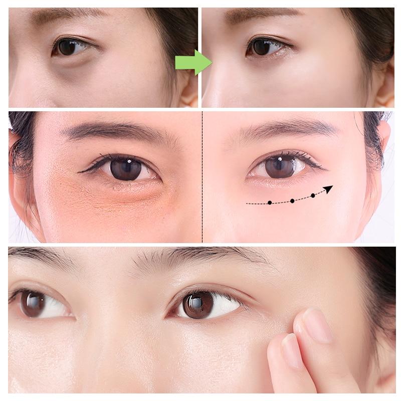 US $19 99 50% OFF|MEIKING Hyaluronic Acid Retinol Anti Wrinkle Aging  Massage Eye Serum Set Collagen Remover Dark Circles Against Puffiness Cream  on