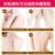 Blanquear la piel Crema para el Cuerpo Psoriasis Dermatitis y Eczema Psoriasis Prurito Antibacterial Ungüentos Cremas Loción Corporal