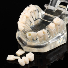 Dental Teeth Model Implant Model Transparent Removable Teeth Model Teaching Teeth Tool Dental Adult Typodont For Medical Science