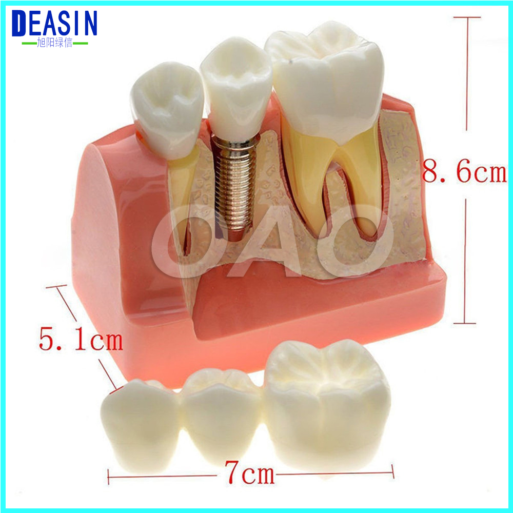 MACRO IMPLANT TEETH MODEL CROWN BRIDGE DEMOSTRATATION TEETH TOOH TYPODONT DENTOFORM 2016 dental orthodontics typodont teeth model half metal half ceramic brace typodont with arch wire