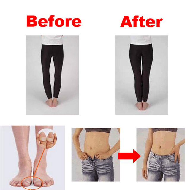 2pcs Fast Lose Weight Toe Rings Magnetic Slimming Body Product Foot Massage Burn Fat Keep Fit Body Shaper 2