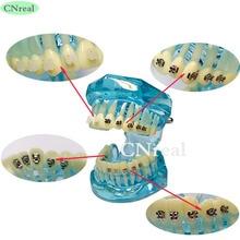 1 Pc 치과 치아 모델 교정 치과 4-type 브래킷 대비 금속 세라믹 Lingual Invisalign 브레이스