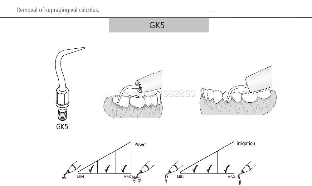 KAVO Dentista Instrumento Equipamentos de Ponta Ultra-sônica