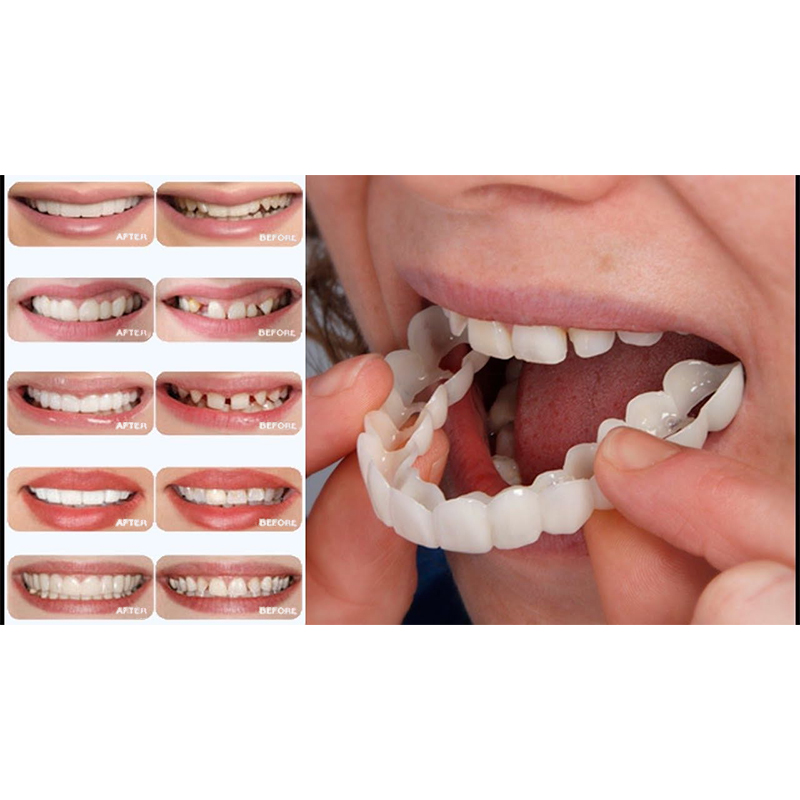 BellyLady Snap On Smile Teeth Perfect Smile Comfort Fit Flex Teeth Fits veneers smile Denture Whitening
