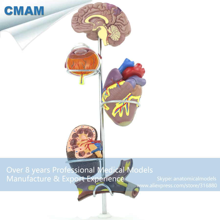 12497 CMAM-HEART21 Small Size Human Hypertension Model, Medical Science Educational Teaching Anatomical Models