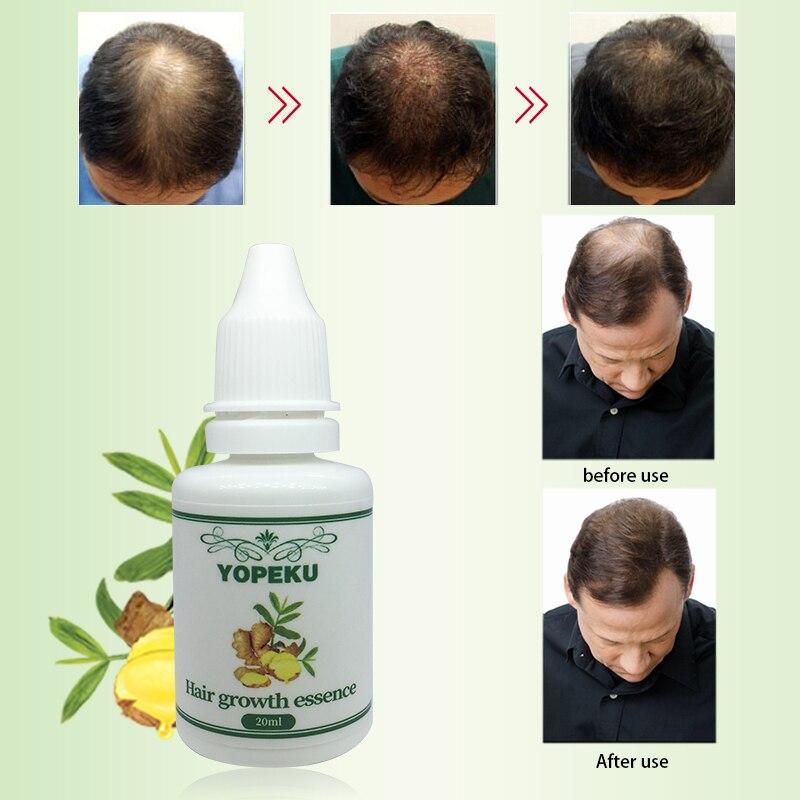 olejki eteryczne na wypadanie włosów
