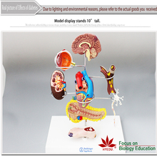 Medical teaching supplies biological 7 Parts pathology medical Effects of Diabetes model