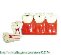 Caries treatment model dental tooth teeth model dentist  anatomical anatomy model odontologia