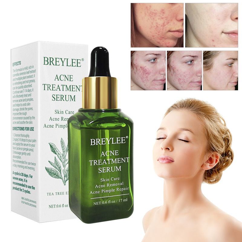 BREYLEE 17ml Acne Treatment Face Serum Nature Leaves Extract Facial Essence Anti Acne Pore Minimizer Skin Care Supplement TSLM2