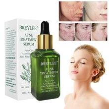 BREYLEE 17ml acné tratamiento suero Natural Extracto de árbol de té esencia Anti cicatriz de acné grano eliminación para el cuidado de la piel productos TSLM2
