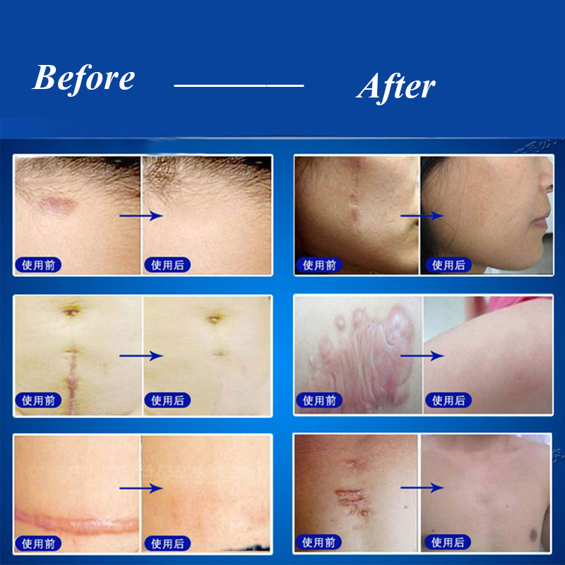 Surgery Scar Products Anti Acne