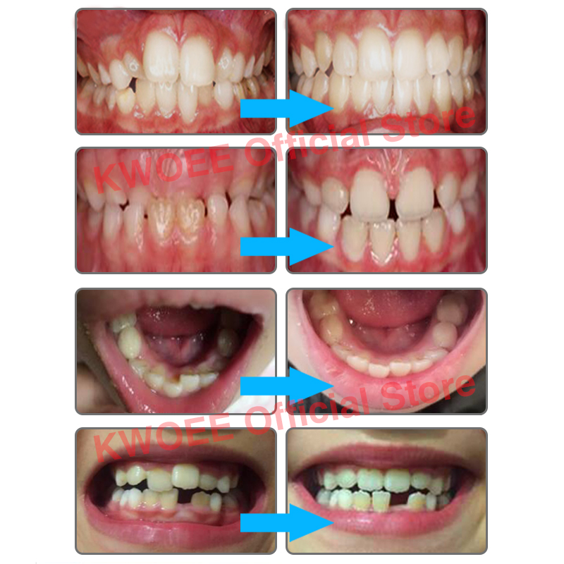 Kid's Tooth Orthodontics Dental Braces Teeth Whitening Dental Orthotics Child Tooth Alignment Trainer Orthodontic Retainers T4K teeth orthodontic model ceramic braces wrong jaw demonstration model orthodontics practice model