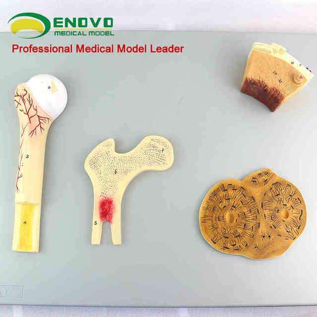 Knochen struktur modell von gefäß cancellous knochen kompakte ...
