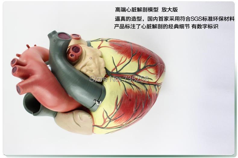 High-end Cardiac Enlargement Model,Human Heart Anatomy Model