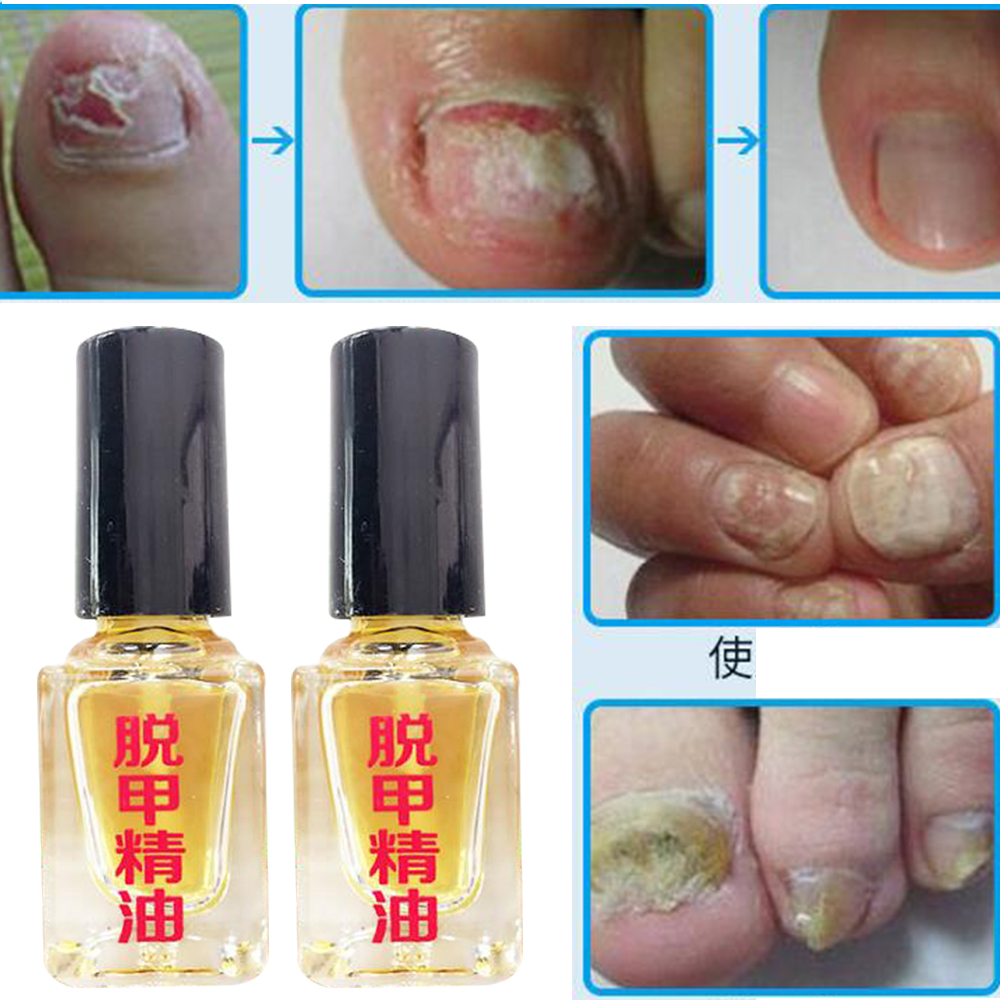 3 Days Effect Fungus Removal Essence Liquid Fungal Nail Treatment Bright Nail Repair Anti Infection Foot Caring Plasters D2423 Days Effect Fungus Removal Essence Liquid Fungal Nail Treatment Bright Nail Repair Anti Infection Foot Caring Plasters D242