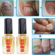 3 días efecto eliminación de hongos esencia líquida hongos tratamiento de uñas Reparación de uñas brillante Anti infección cuidado de los pies yesos D242