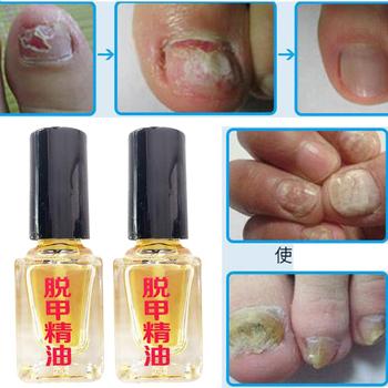 3 dni efekt grzyb usuwanie Essence ciecz grzybicze terapia na paznokcie jasne naprawy paznokci leczenie infekcji stóp pielęgnacja tynk D242 tanie i dobre opinie Rimdou Foot