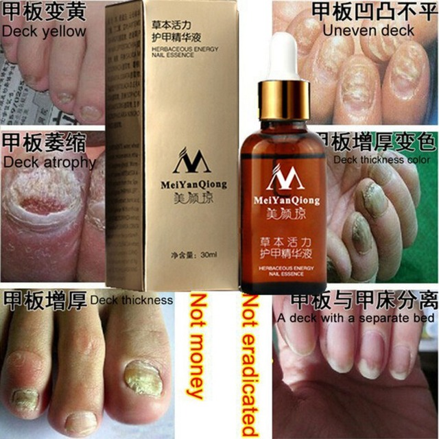NEW!!!Fungal Nail Treatment Essence Nail and Foot Whitening Toe Nail ...