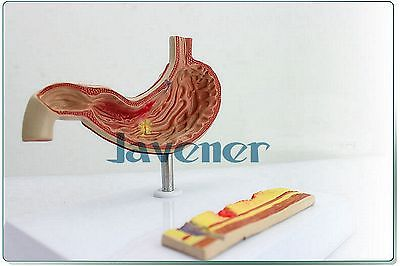 Human Anatomical Gastric Ulcer Medical Model Learning Resources Digestive human anatomical kidney