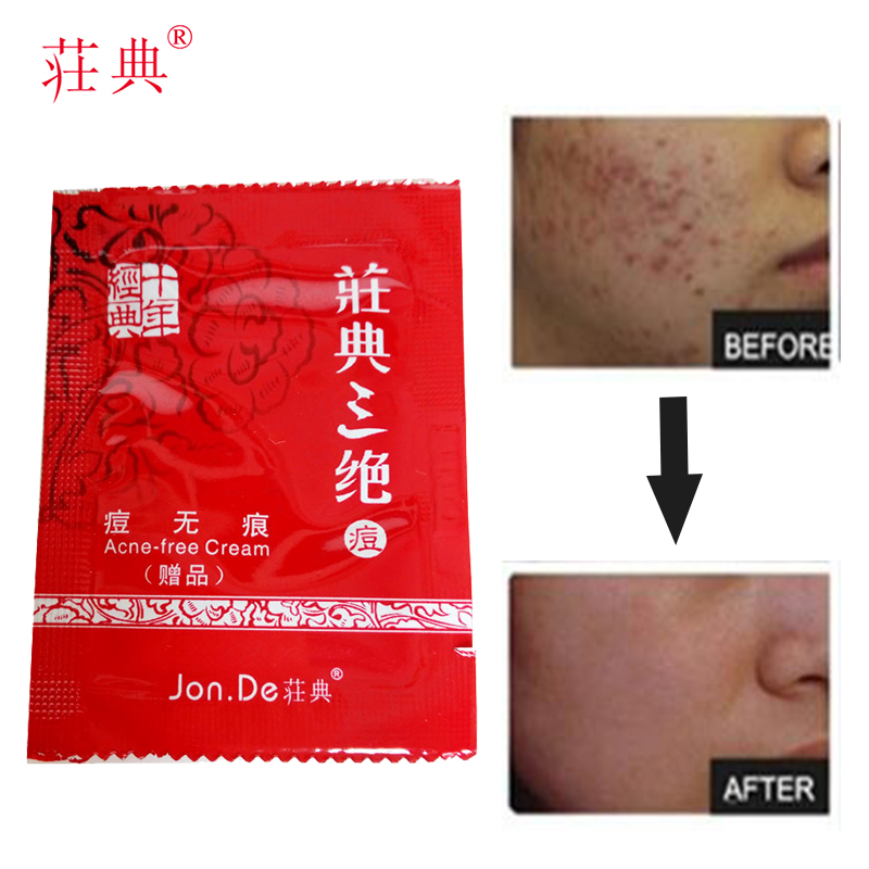 Acne Treatment Cream lotion anti acne cream acne comdos pimples oily skin control oil for all skin