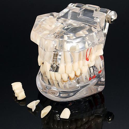 Modelo de Estudo Dental Ensine Implant Teeth Restauração Ponte Dente Cárie Educação SMT208