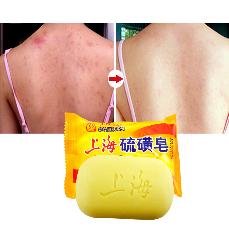 Shanghai Sulfur Soap Oil-control Acne Treatment Blackhead Remover Soap 95g Whitening Cleanser Chinese Traditional Skin Care