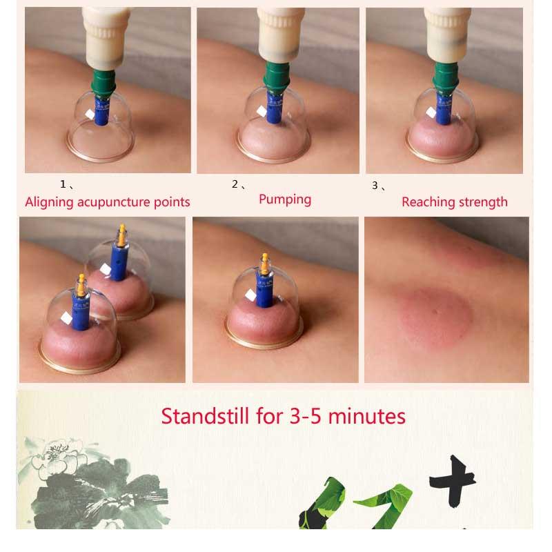 de Terapia de Sucção Médica Massageador Corporal Set Médica Chinesa