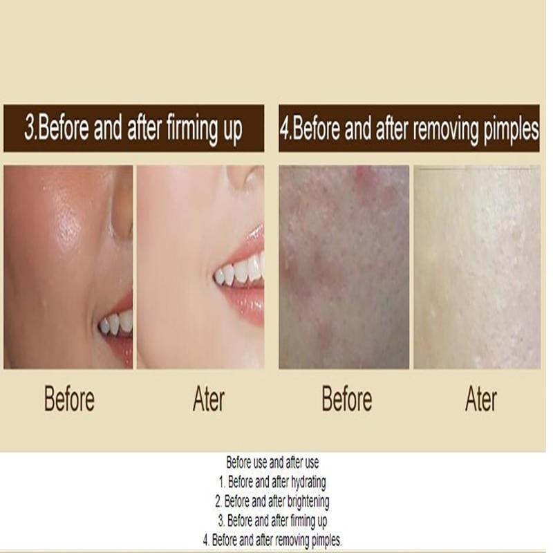 Moisturizing Face Cream Scar Remove Creme Age Spot Pigment