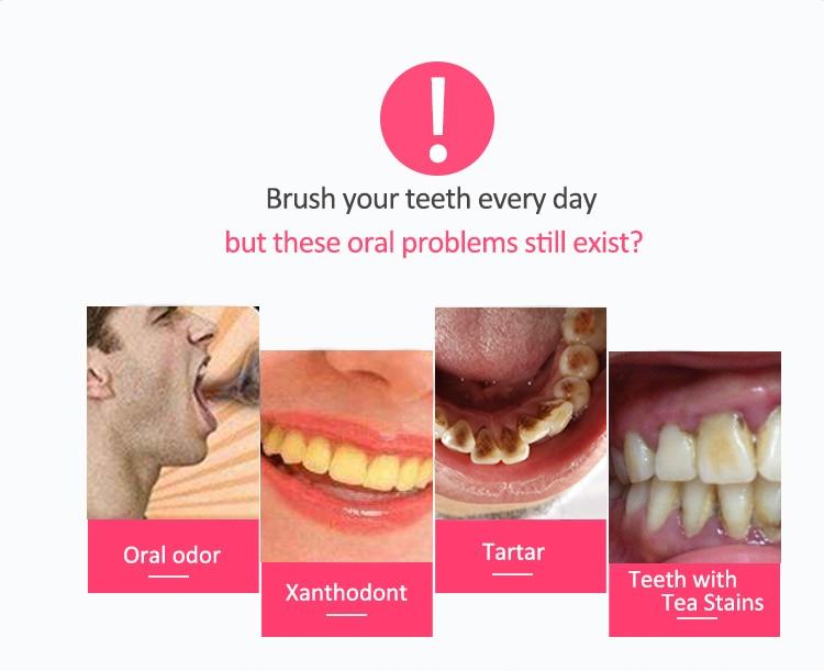 Limpador de dentes elétrico remover a mancha