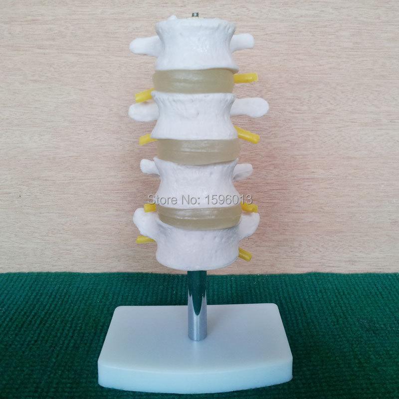 HOT lumbar vertebra Model 4 pcs,  Lumbar Set(4 pcs) model,Lumbar modelHOT lumbar vertebra Model 4 pcs,  Lumbar Set(4 pcs) model,Lumbar model