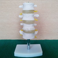 HOT lumbar vertebra Model 4 pcs, Lumbar Set(4 pcs) model,Lumbar model