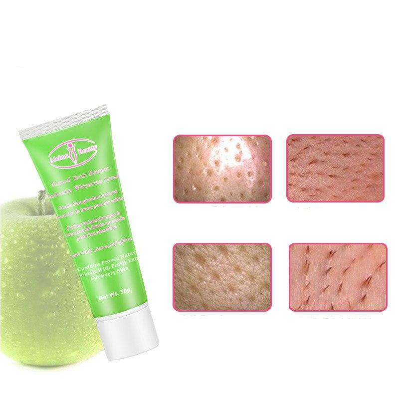 50g Whitening Cream Body Dark Skin Armpit Knee Lightening Bikini Underarm Inner Thigh Hot High Quality Body Lotion 1