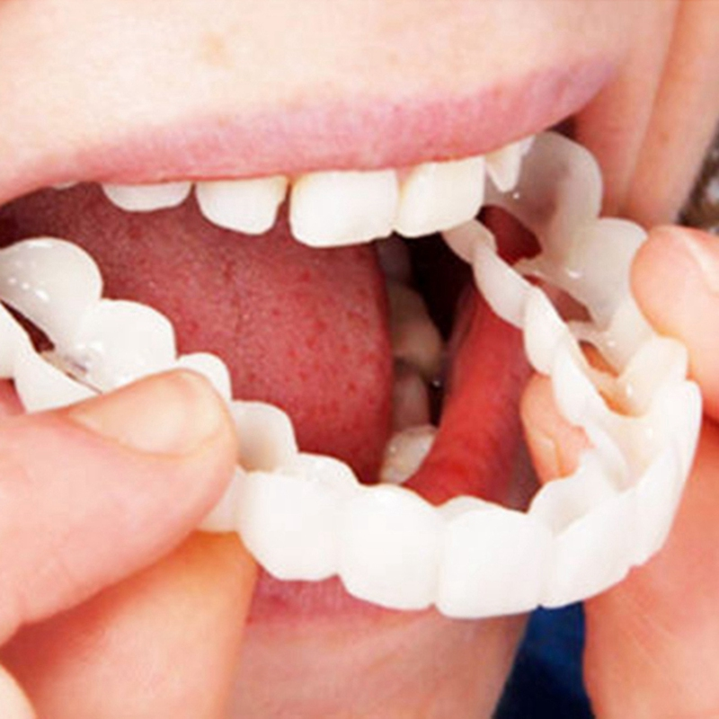 2Pcs Hot Sale Comfort Fit Flex White Fake Teeth Top Veneer Denture For Men Women Oral Supplies Orthodontic Braces Set