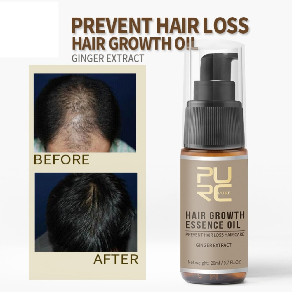Powerful Hair Growth Essence Hair Loss Products Essential Oil Liquid Treatment Preventing Pomade Loss Hair Care Product 1