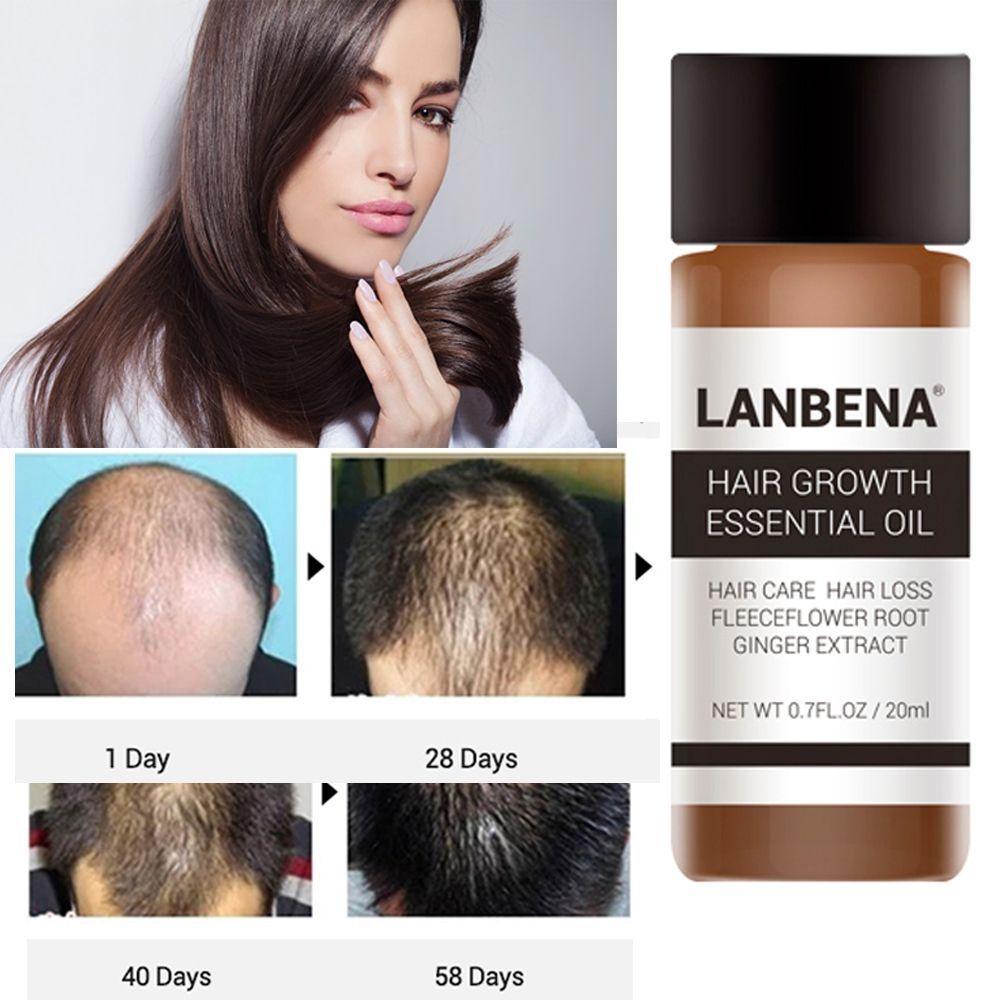 1 Bottle 20 ml Powerful Fast Hair Growth