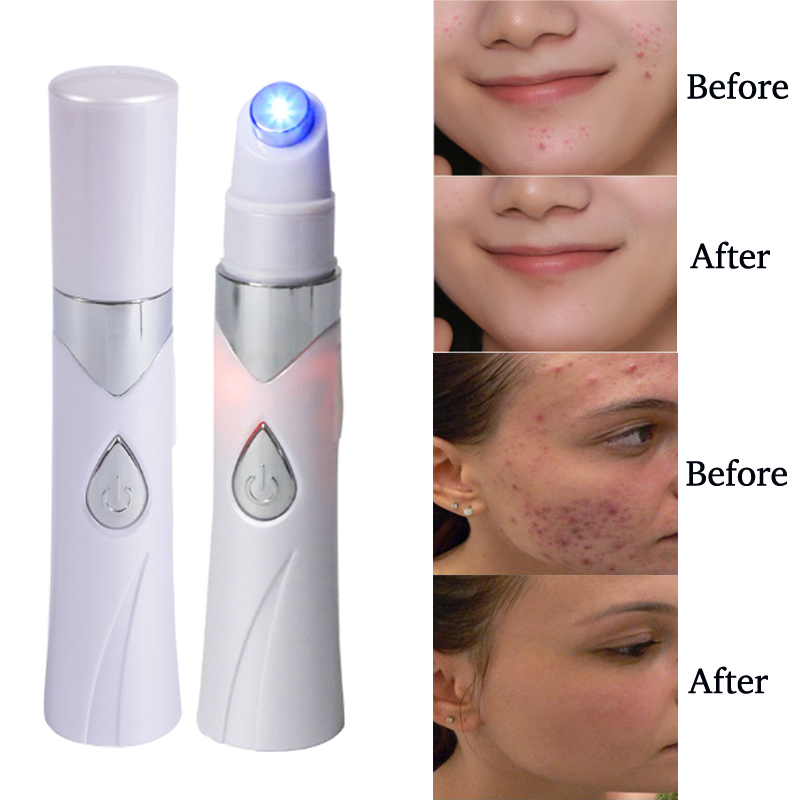 New Acne Laser Pen Portable Wrinkle Removal MachineMedical Blue Light Facial Massager Scar Wrinkle Acne Removal USB charging