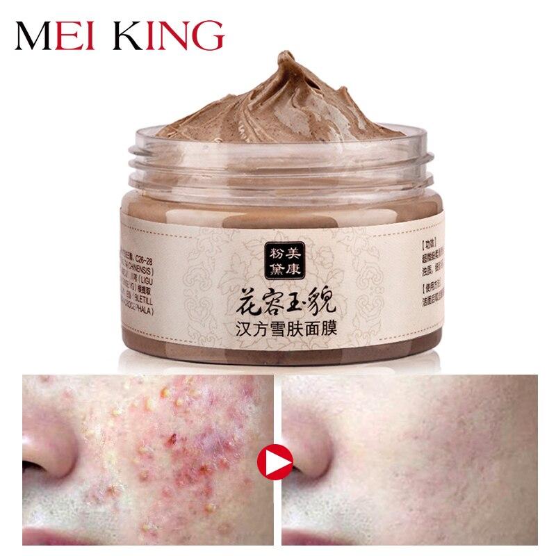 MEIKING Face-Mask Purifying Moisturizing-Facial-Masks Skin-Care Whitening Blackhead Deep-Cleansing