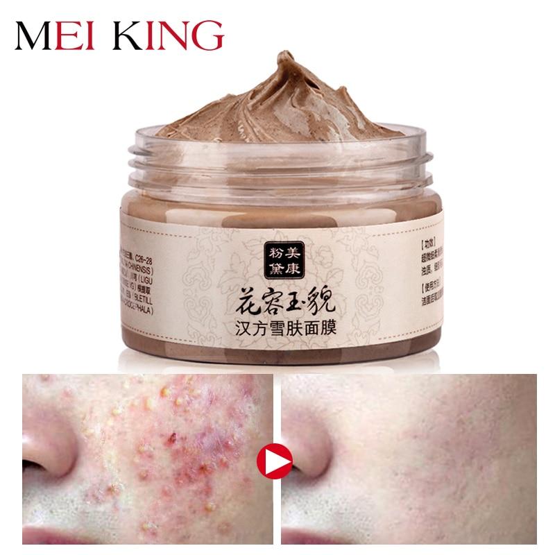 מייקינג Blackhead Face Mask ניקוי עמוק טיהור לקלף את הראש השחור הלבנת מסכות לפנים מסכות טיפוח העור 120 גרם