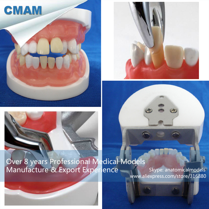 CMAM-DENTAL24 Oral Practice Model of Dental Extraction,  Medical Science Educational Teaching Anatomical Models dental root canal filling practice model dental pulp model teaching model
