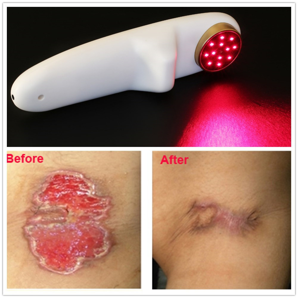 Rechargeable Cold Laser Therapy Equipment Portable Body Pain Reliever Medical Health Lllt Phototherapy Device For Wound Healing
