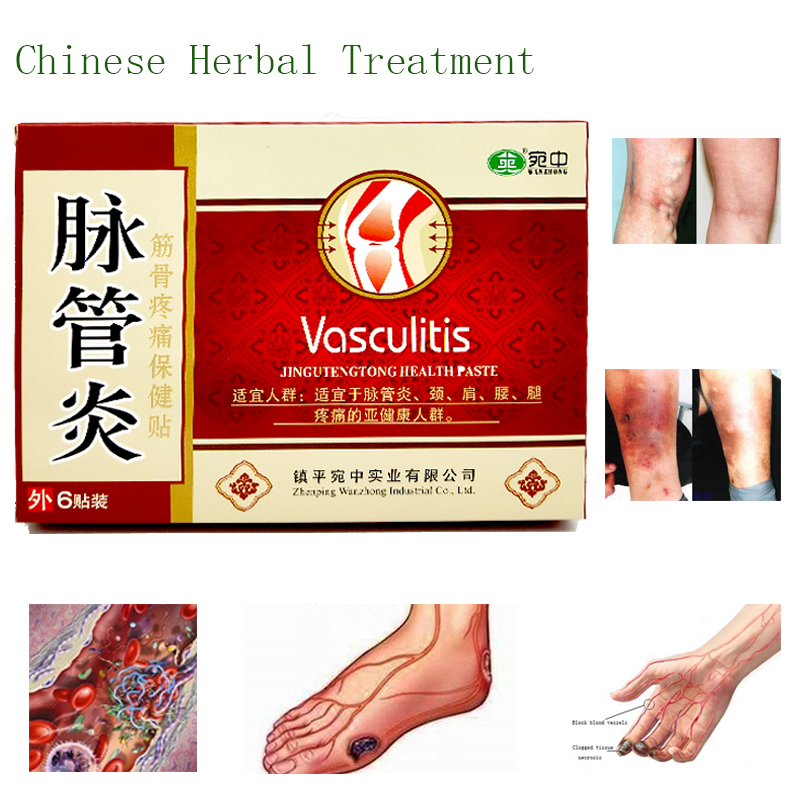 24PCS Spider Veins Varicose Treatment Plaster Varicose Veins Cure Patch Vasculitis Natural Solution Herbal Patches