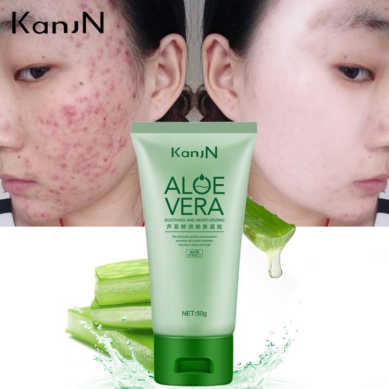 KanJN Brand Soothing Moisturizing Aloe Vera Gel Skin Care Repair After Sun Dilute Acne Fine Pores Hydrating Facial Cream Beauty