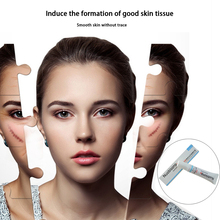 New Arrival Nuobisong Facial Scar Removal Cremas Spots Treatment Whitening Face Cream Stretch Marks moisturizing