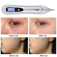 LCD Plasma Pen Face Skin care Dark Spot Remover Laser Mole Wart Removal Tattoo/Freckle Removal Tool Beauty Care недорого