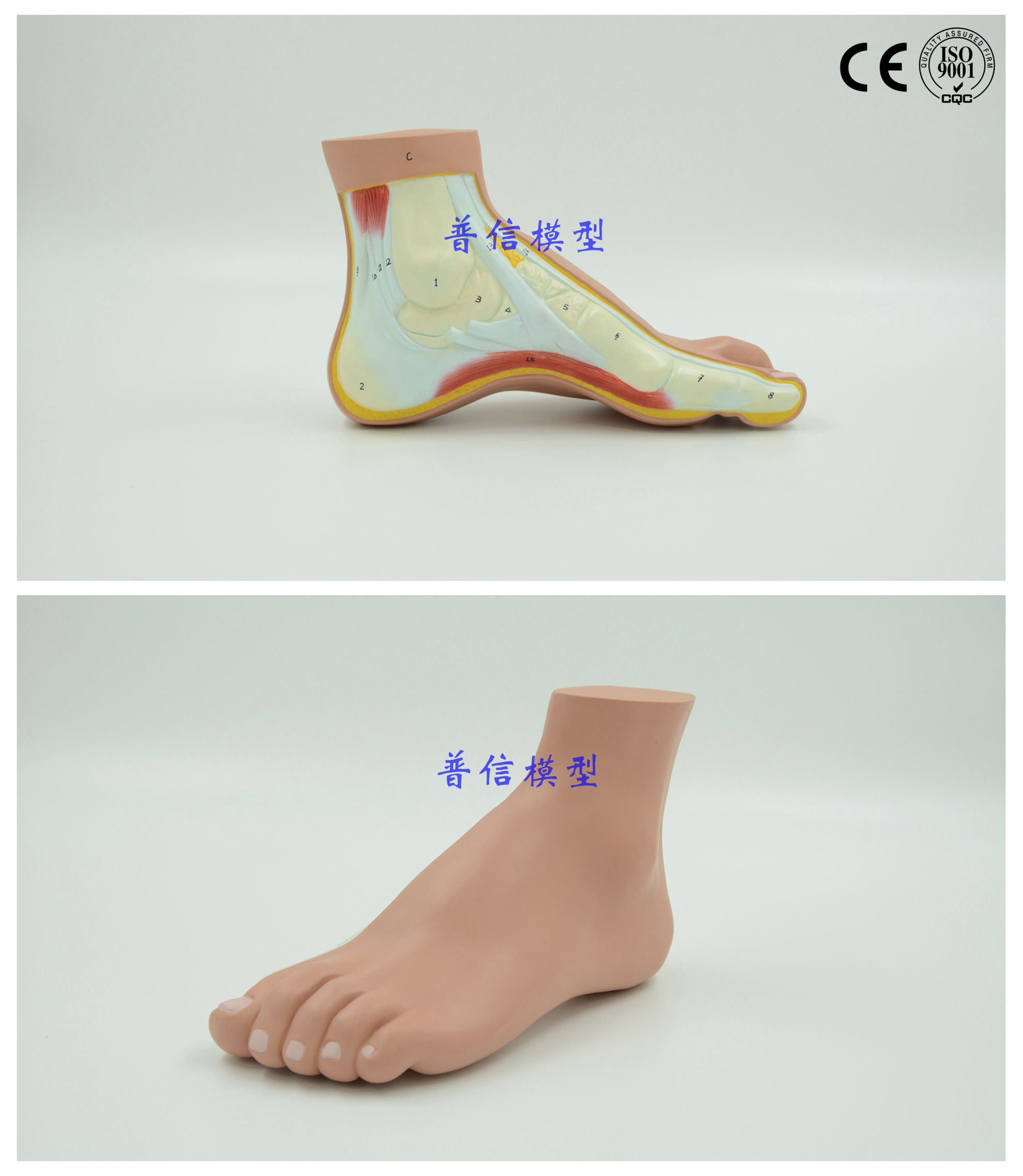 Free shipping&pes arcuatus model,high arch foot model, claw foot ...