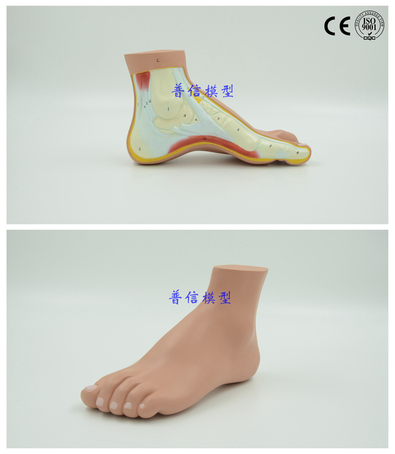 Free Shippingpes Arcuatus Modelhigh Arch Foot Model Claw Foot