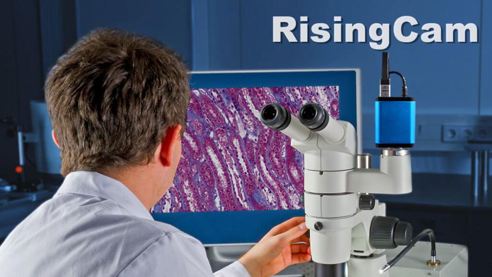 HD-Microscope-Camera-Applications_Clinical-Pathology1-1024x576